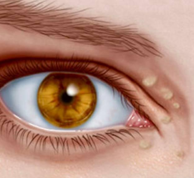 Офтальмогерпес (герпес на глазу): фото, лечение, симптомы