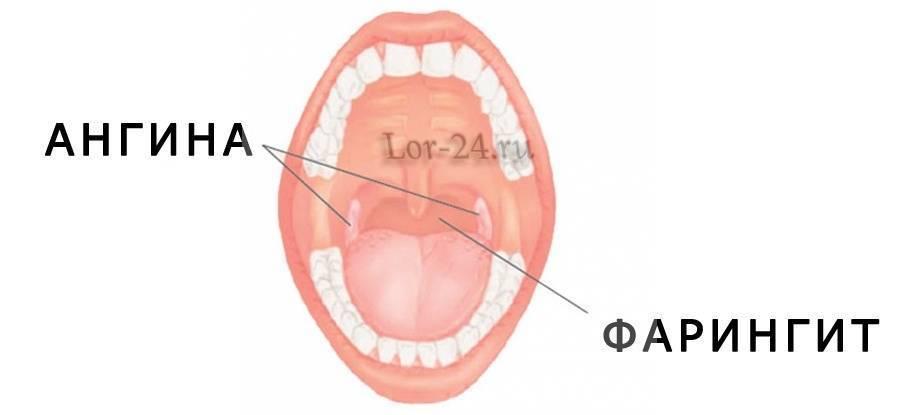 Чем отличается фарингит от ларингита у взрослых, способы лечения