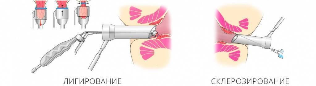 легирование геморроидальных узлов латексными кольцами последствия