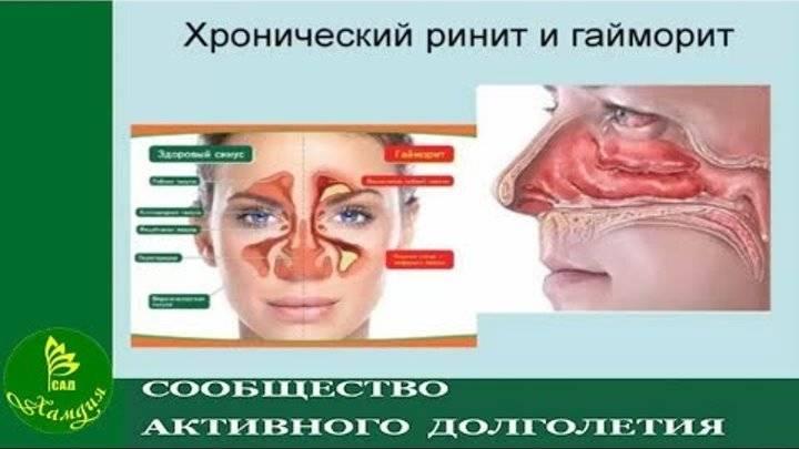 В чем разница между ринитом и гайморитом, какие отличия у заболеваний?