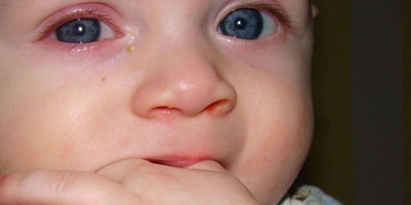 Конъюнктивит у детей: причины, симптомы и лечение