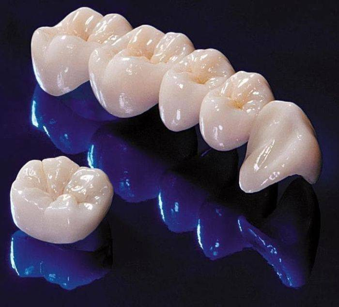 Керамические коронки на зубы
