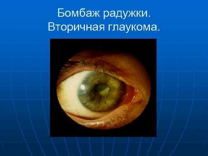Вторичная глаукома причины симптомы лечение