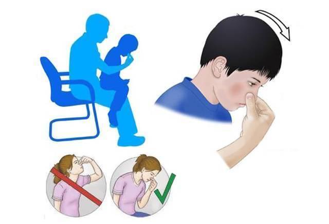 как остановить кровь из носа ребенку