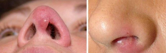 Лечение болячек в носу народными средствами