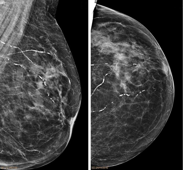 Маммография и месячные