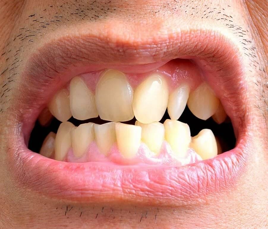 кривые нижние зубы