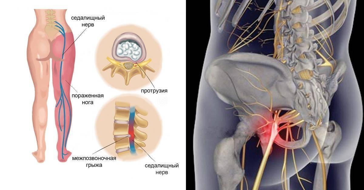 Защемление седалищного нерва (ишиас)