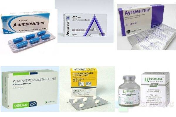 Антибиотики при трахеите
