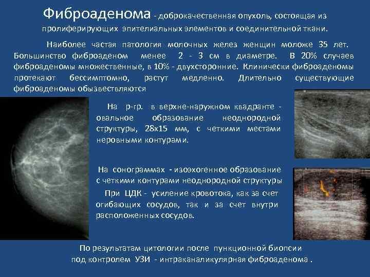 болит фиброаденома молочной железы
