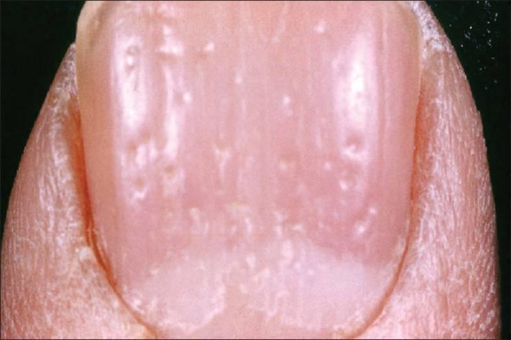 Псориаз ногтей на ногах и руках — причины, симптомы, лечение