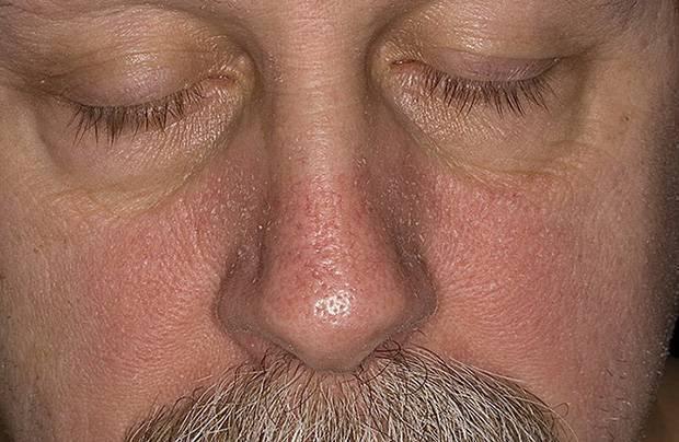 стероидный дерматит на лице лечение