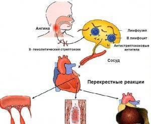 Осложнения после ангины у взрослых и детей: признаки, лечение