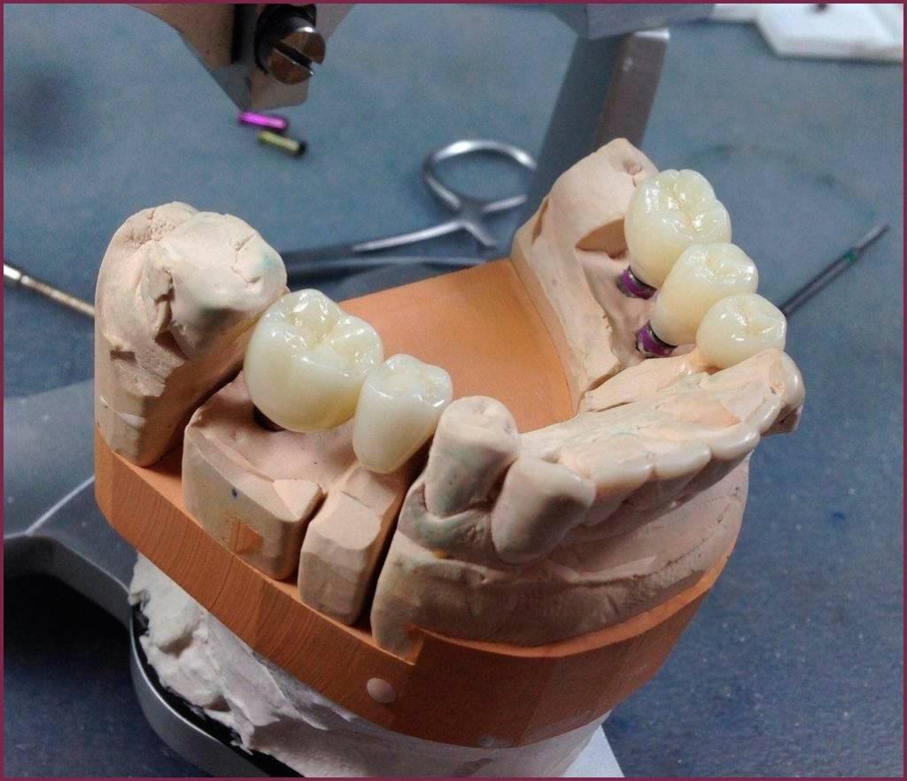 Какие коронки на зубы лучше — какие зубные изделия считаются самыми хорошими