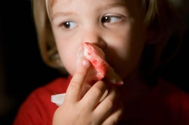 почему ночью идет кровь из носа