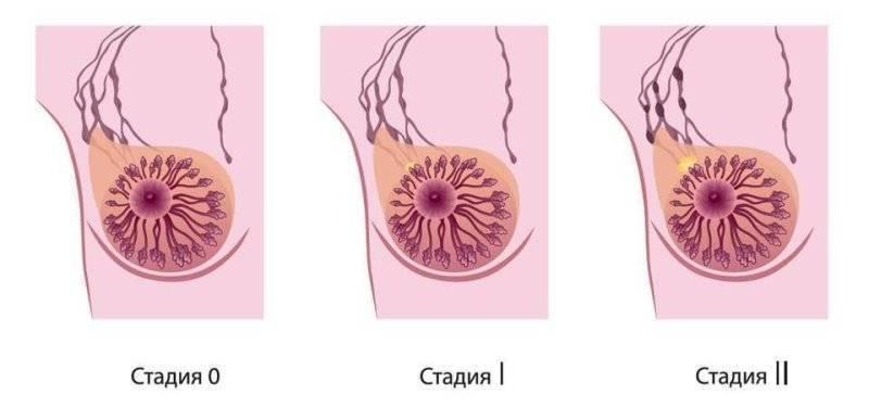 Рак молочной железы 3 степени: какова продолжительность жизни?