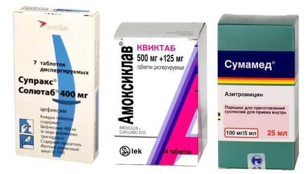 Эффективные антибиотики при ларингите у взрослых и детей