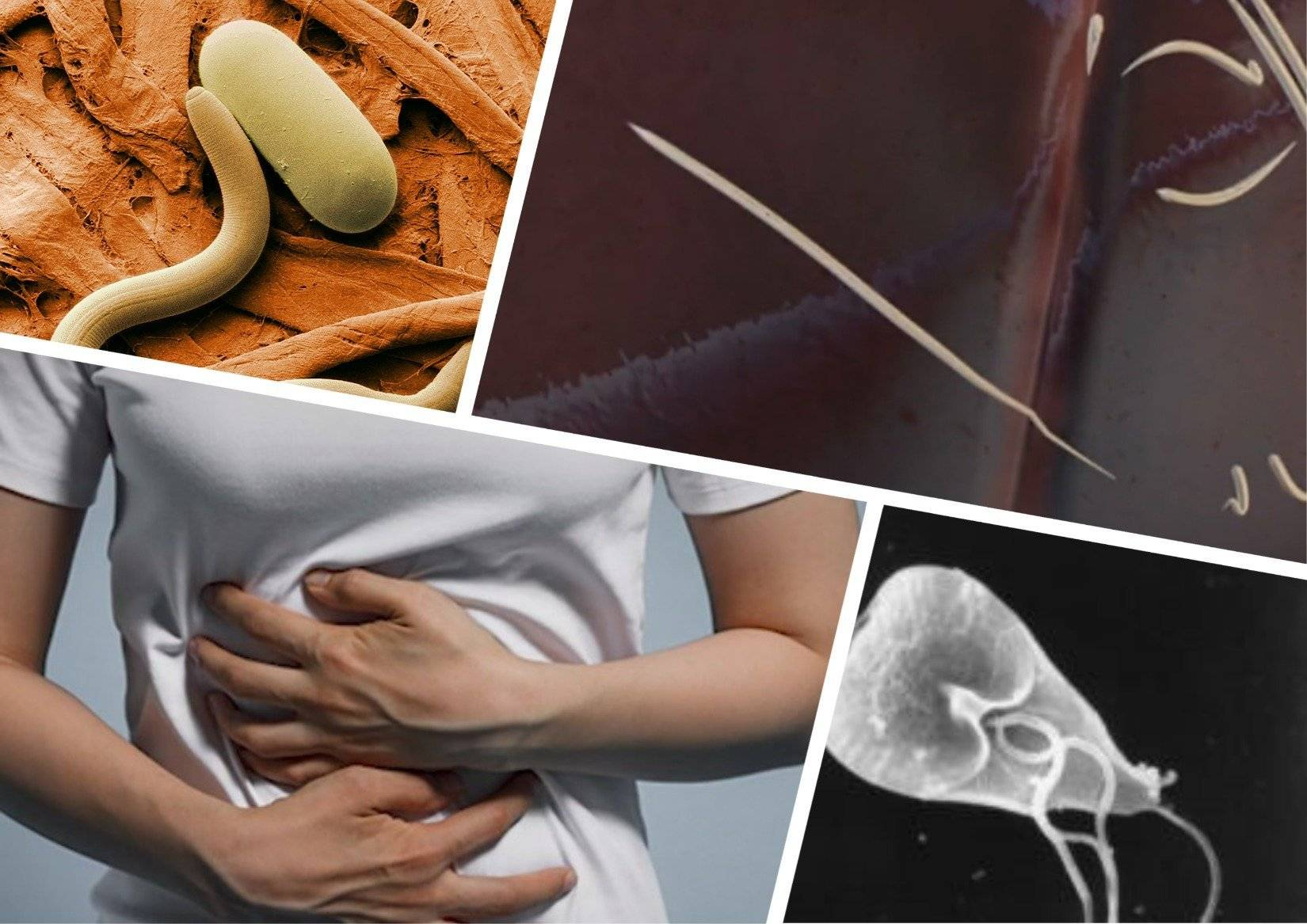 признаки глистов у человека симптомы