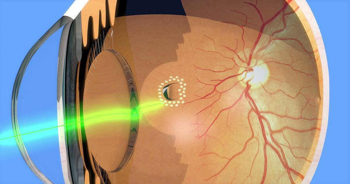 упражнения для укрепления сетчатки глаза