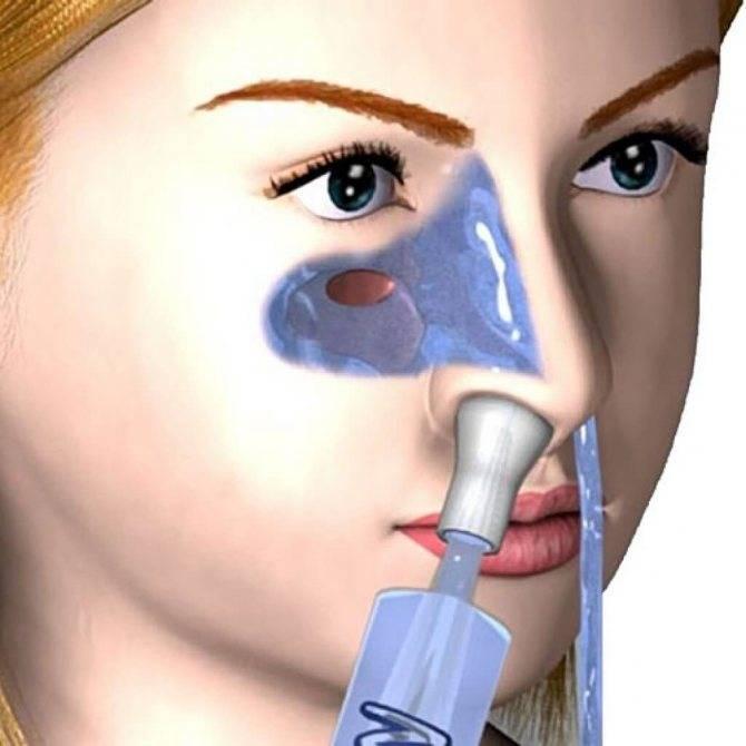 Кто то промывал нос этим?  натрия хлорид 0,9%
