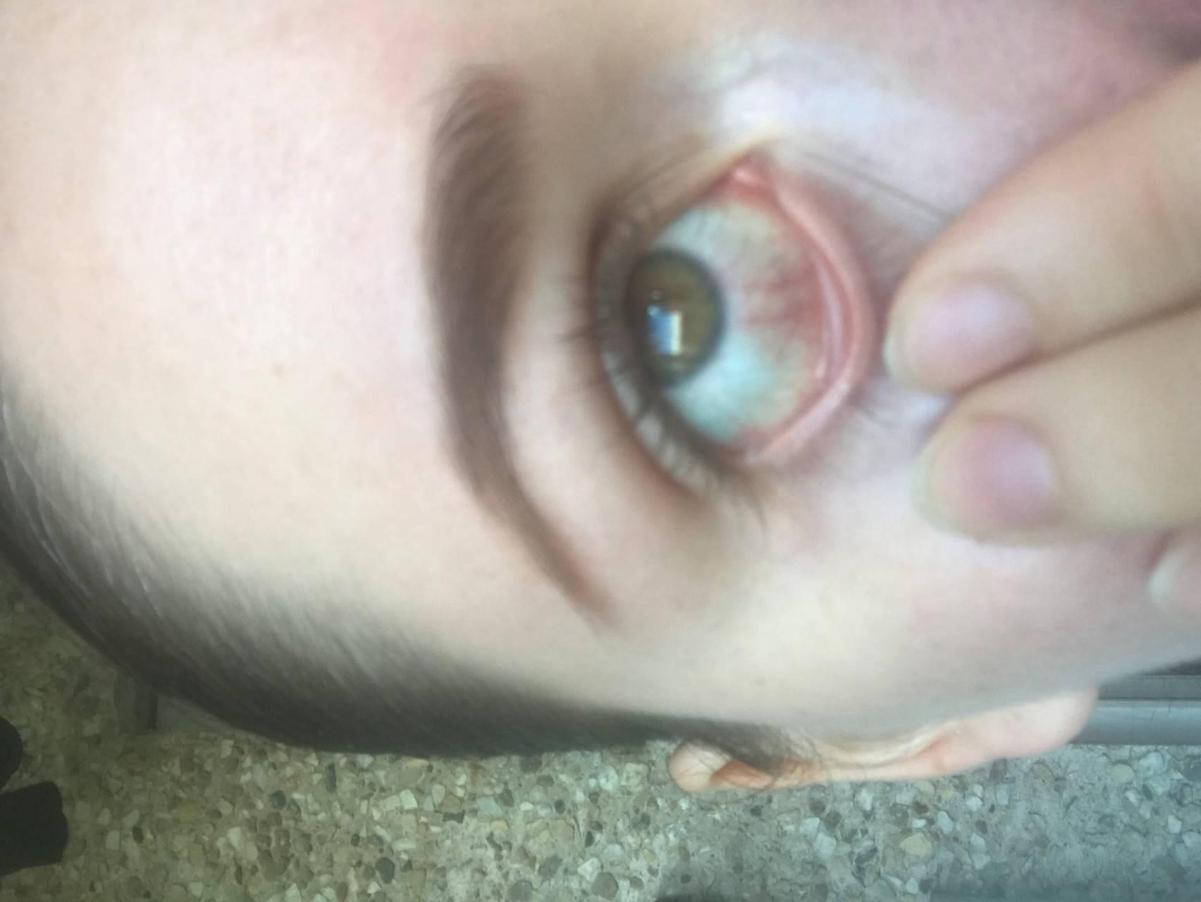 Глаза покраснели болят и слезятся