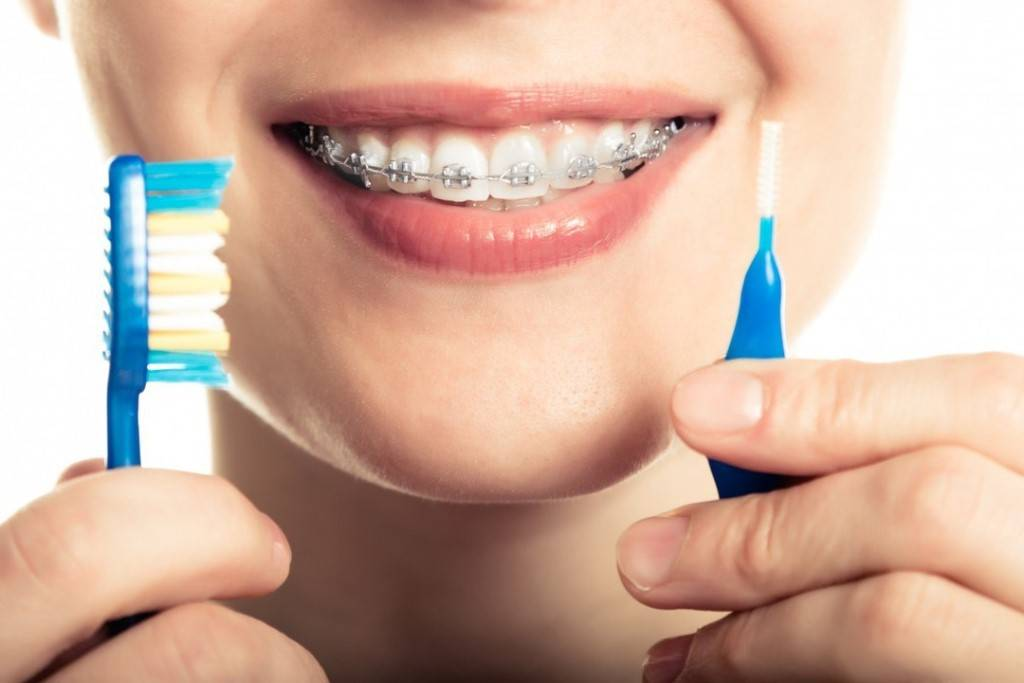 зубная паста для брекетов