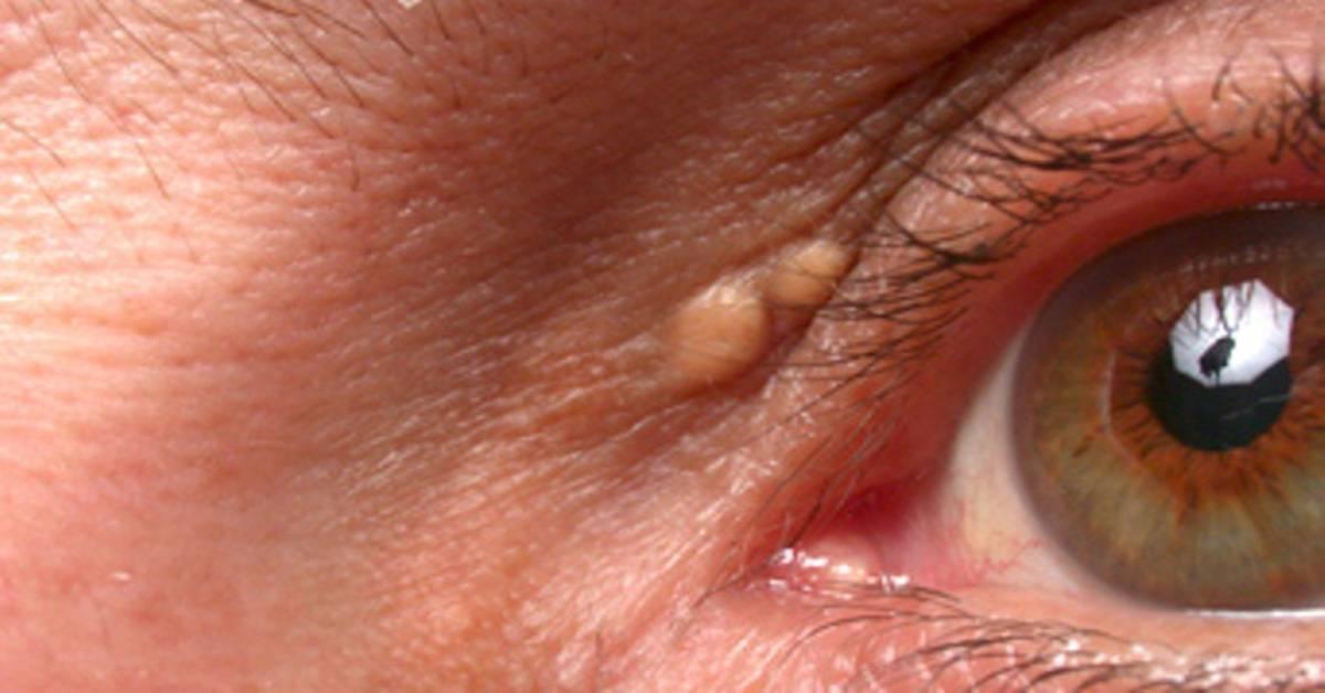 Список заболеваний глаз у человека — описание симптомов