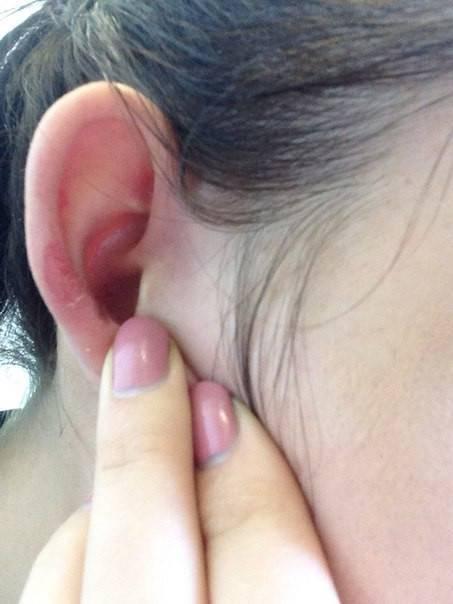 псориаз на ухе