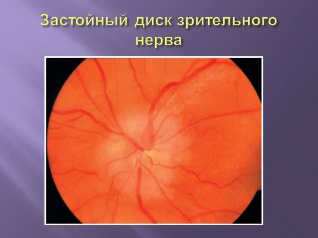 застой диска зрительного нерва