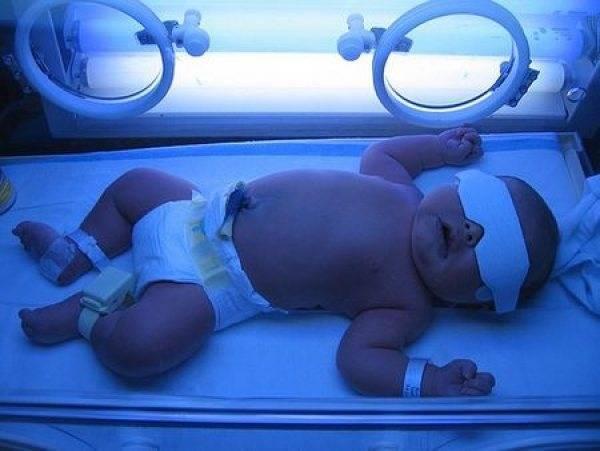Глюкоза для новорожденных: как давать, показания при желтухе
