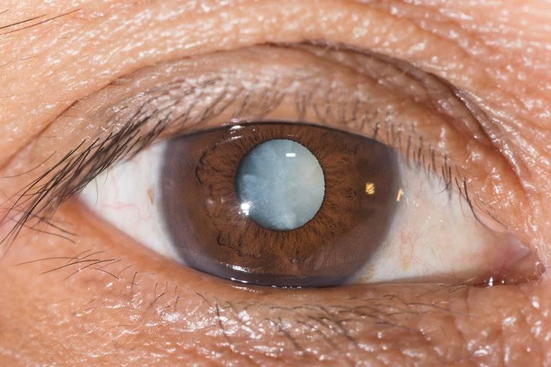 Туман в глазах: причины, симптомы и лечение