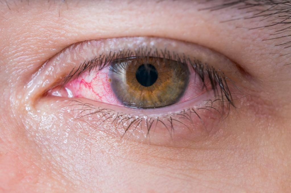 хронический коньюктивит глаз лечение у взрослых