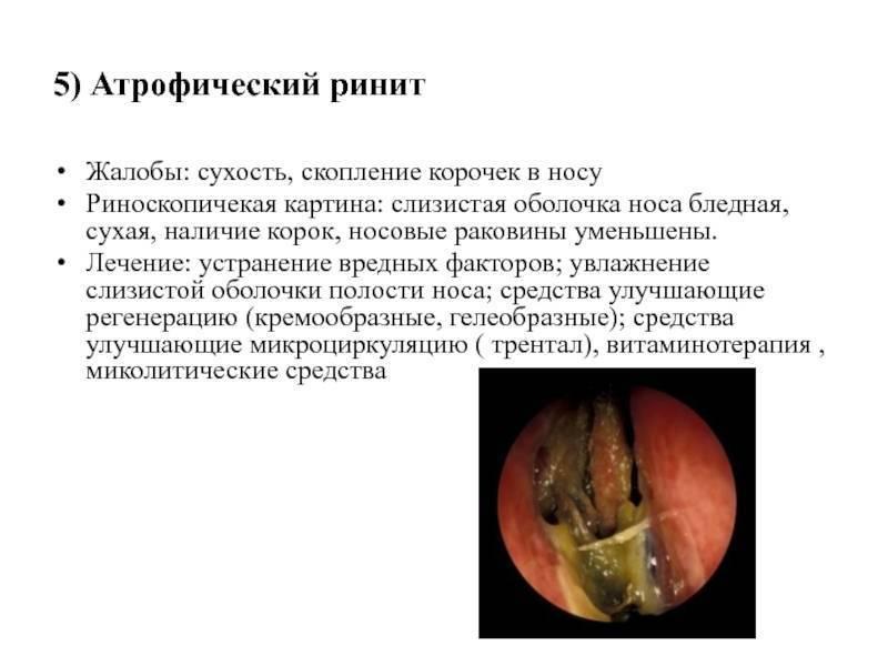 корочки в носу лечение