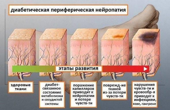 лечение полинейропатии при сахарном диабете