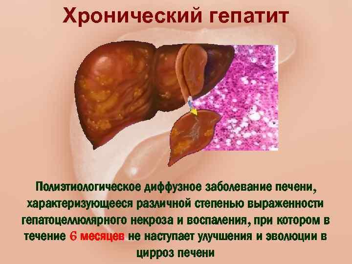 Какие симптомы и в чем сложность лечения хронического гепатита с