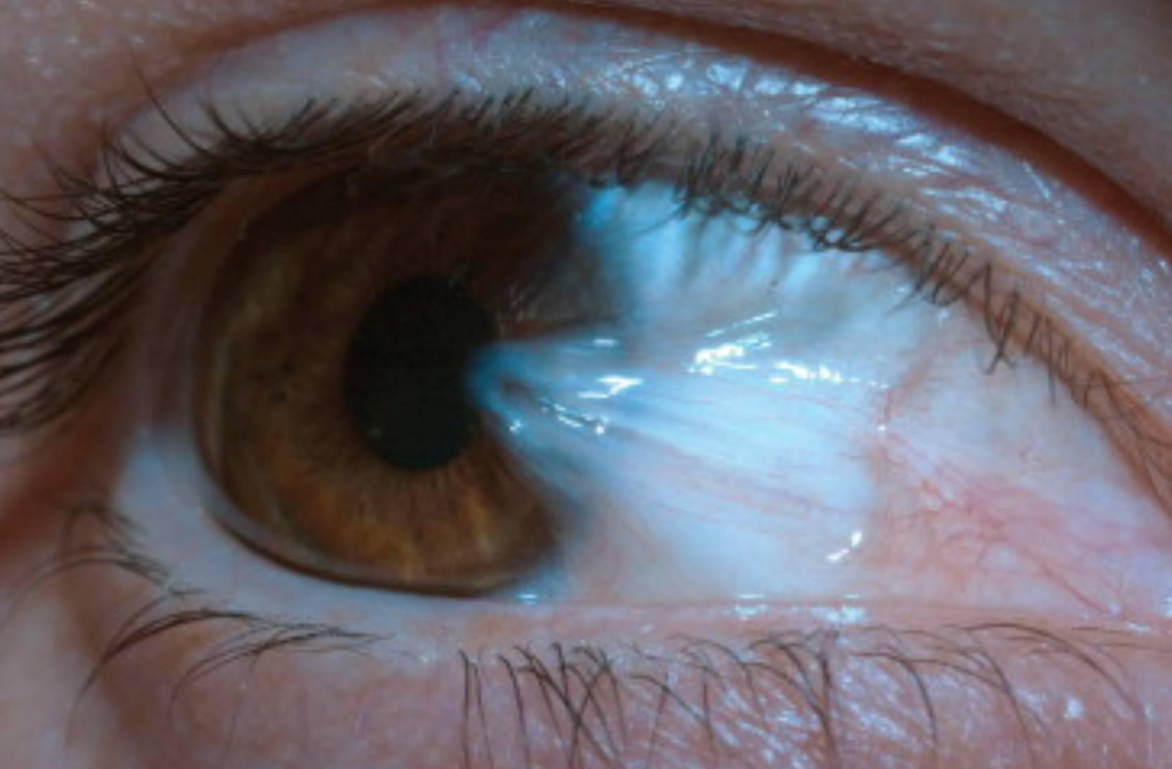 Пленка на глазу у человека: причины и лечение