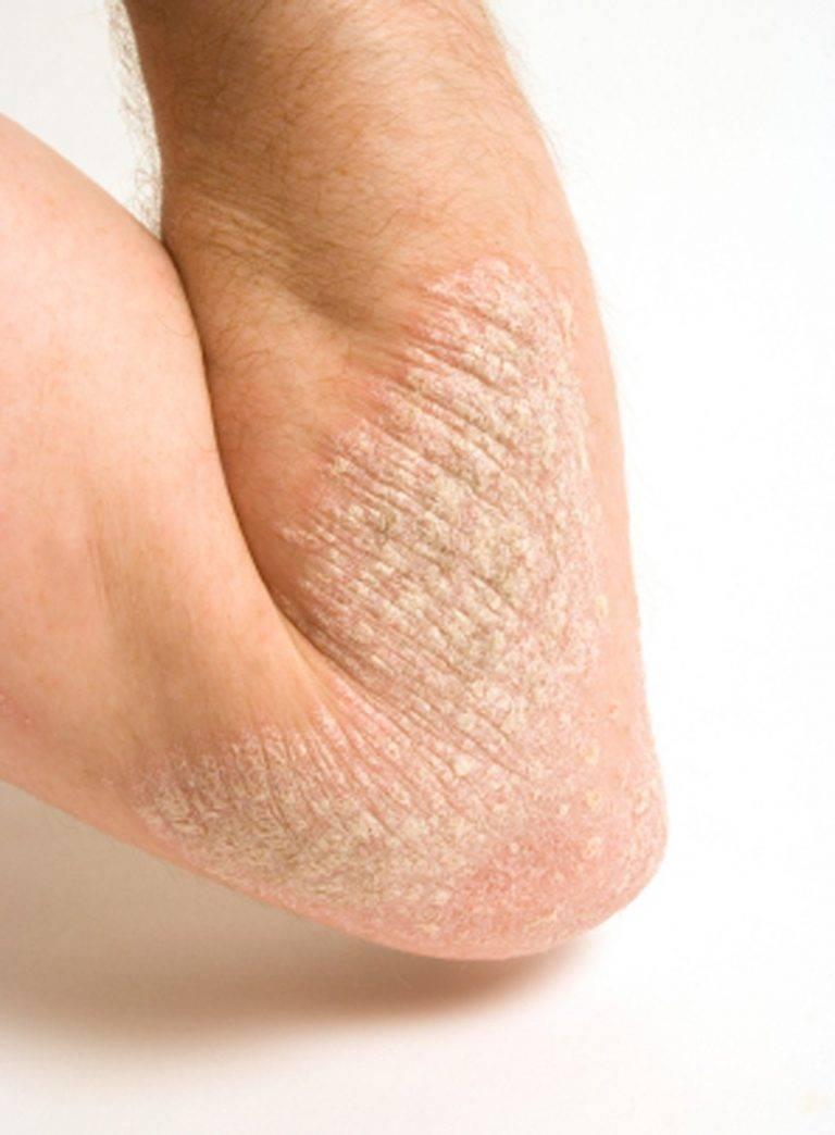 лечение псориаза на ногах