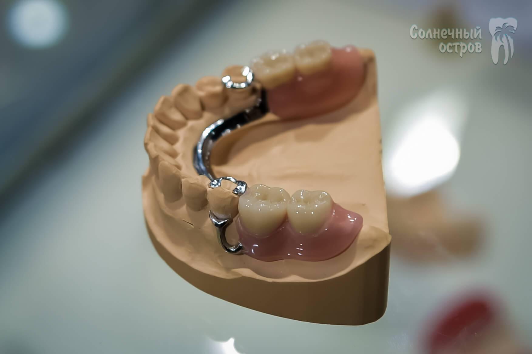 Шинирующий бюгельный протез— фото и особенности зубных конструкций