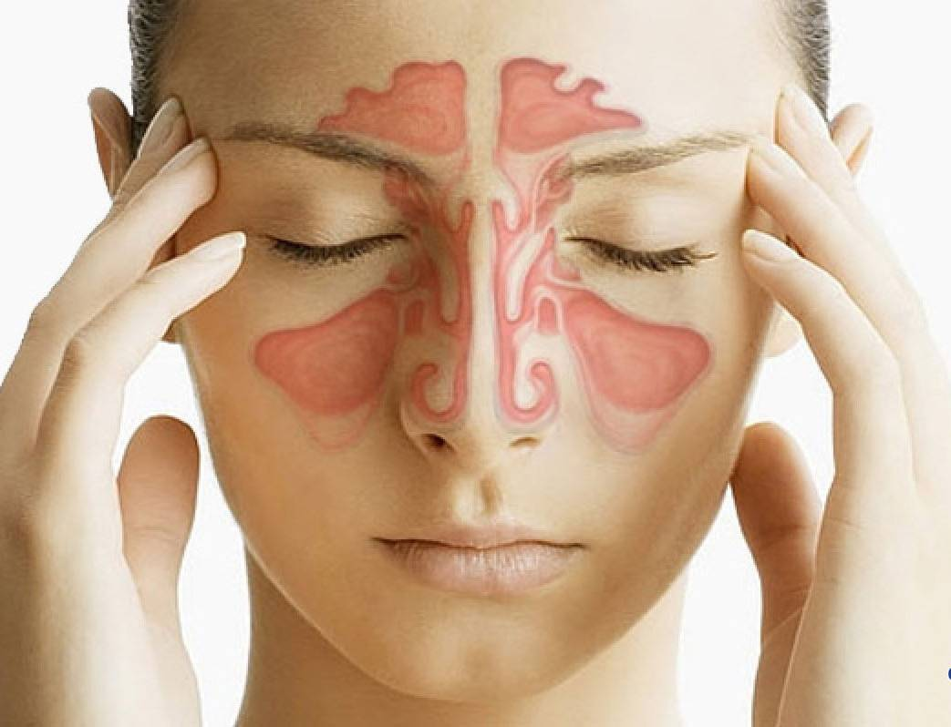 Что такое хронический синусит: симптомы и лечение у взрослых