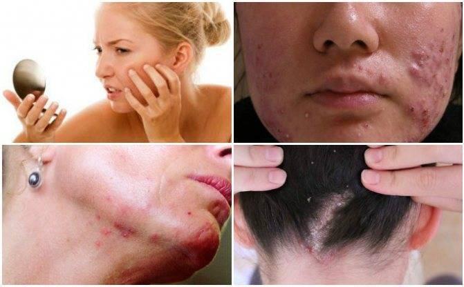 Подкожный клещ демодекс. лечение кожи лица, пораженной демодекозом. лечение в домашних условиях