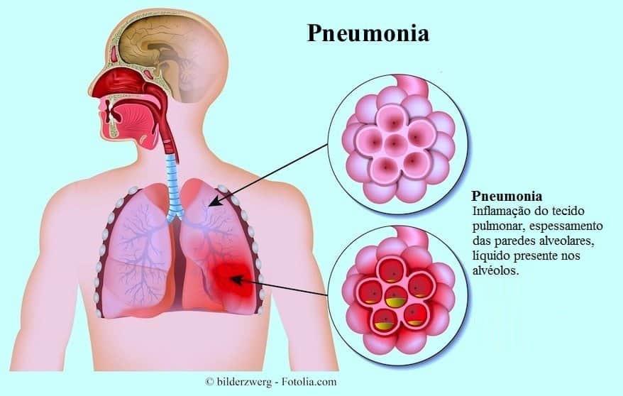 Основные симптомы и виды лечения хламидийной пневмонии