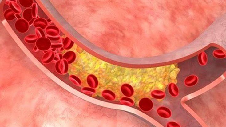 Как вывести из сосудов организма холестерин