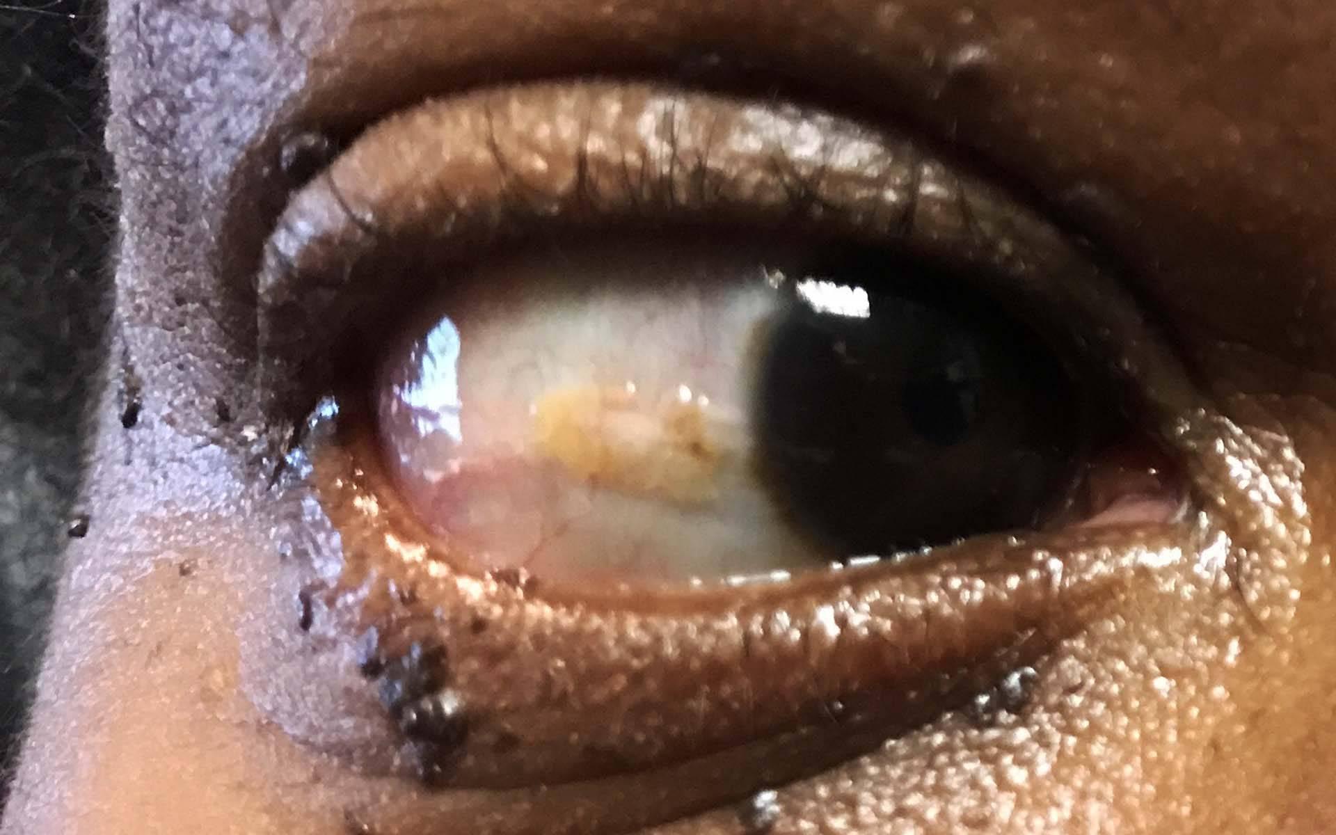 нарост на глазном яблоке