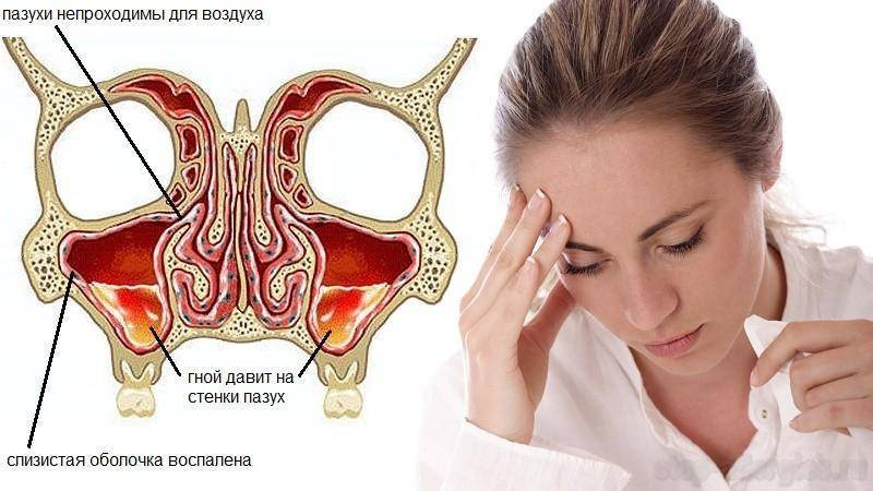 Лечение хронического фронтита