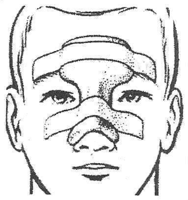 как вправить нос в домашних условиях