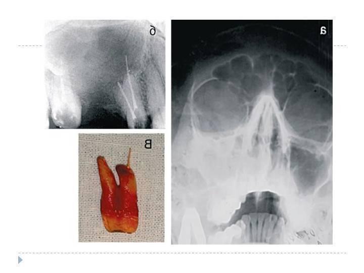 одонтогенный синусит верхней челюсти