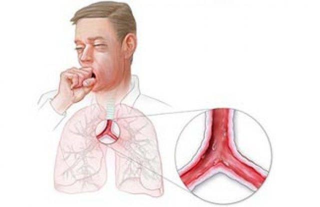 симптомы при трахеите