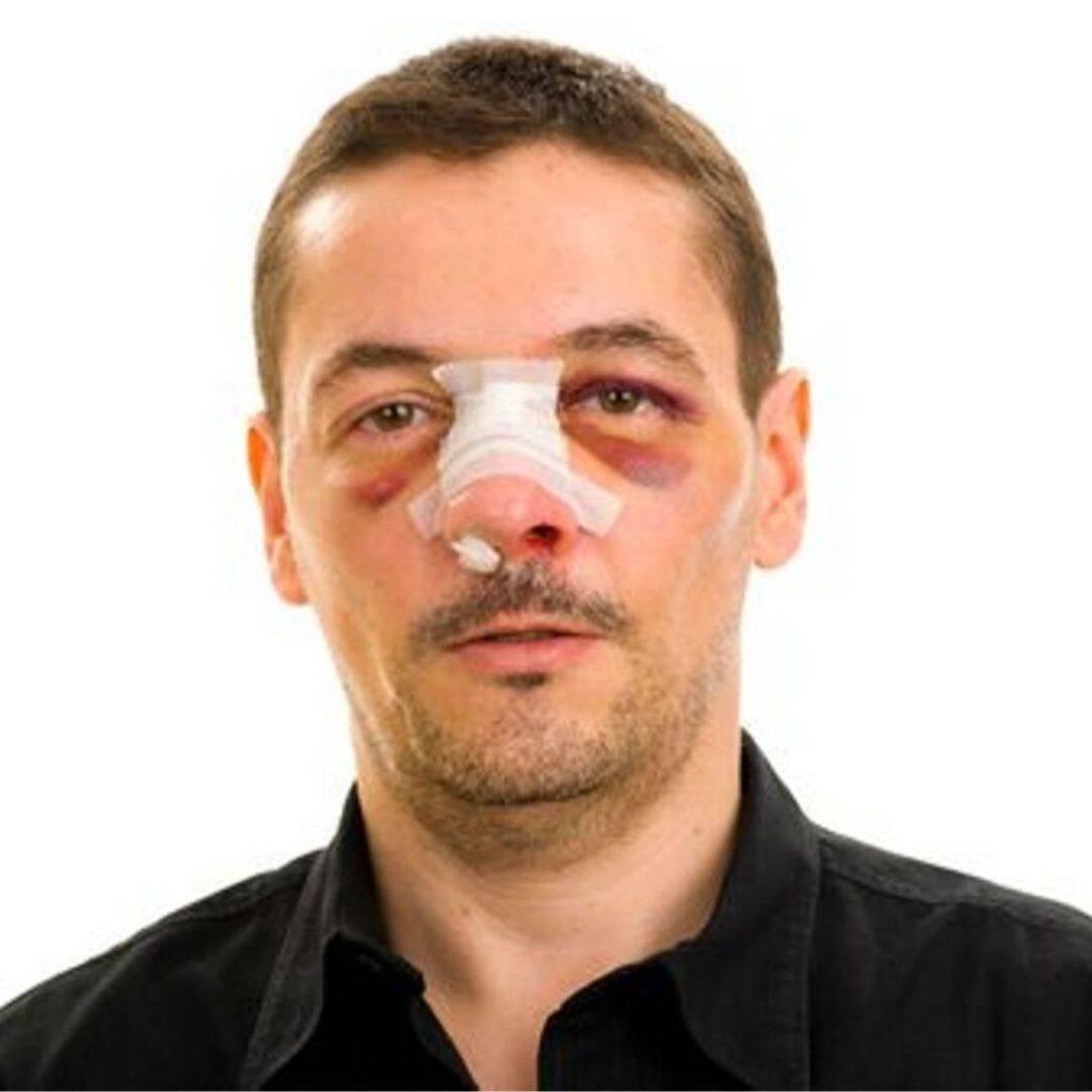 Почему в носу долго не проходят болячки: лечение