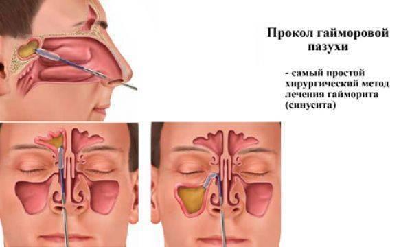 Как лечить синусит без антибиотиков (с иллюстрациями)