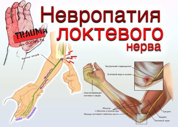 Невропатия локтевого нерва - симптомы болезни, профилактика и лечение невропатии локтевого нерва, причины заболевания и его диагностика на eurolab